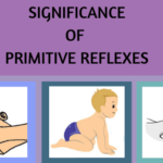 Primitive Reflexes: A Blog Series: Post 2